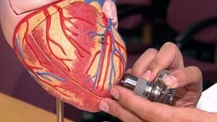 Herzmodell mit Kunstherz