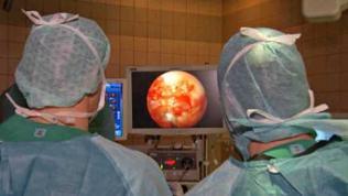 Ärzte bei der Knorpelzell-Transplantation.