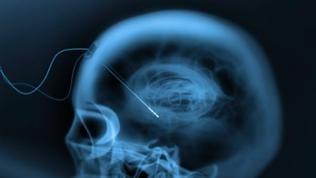 Schrittmacher fürs Gehirn: hierbei werden zwei Elektroden ins Gehirn eingesetzt - eine Fernsteuerung für die Psyche.