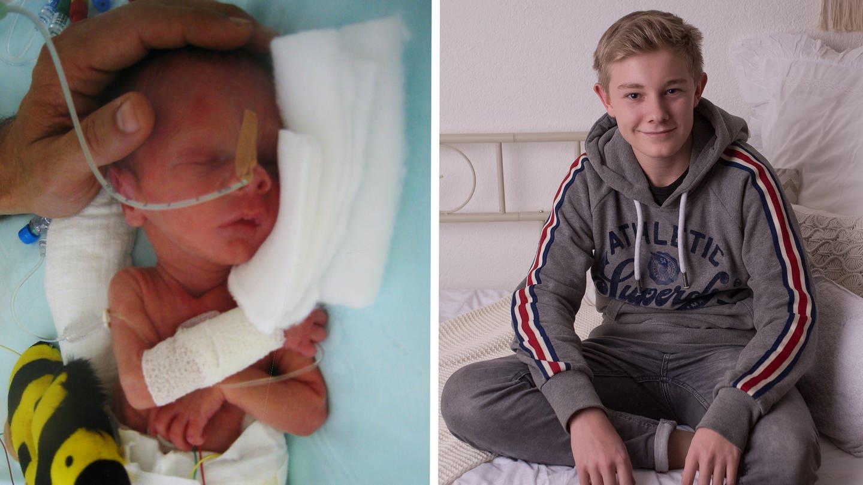 Luca wurde viel zu früh geboren (Foto: Nadine Frohnhöfer)