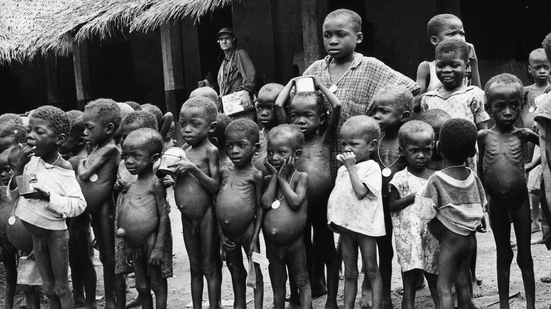Kinder von Biafra im Okporo Hospital, Nigeria, Januar 1970 (Foto: picture-alliance / dpa, picture-alliance  ©MPLeemage)