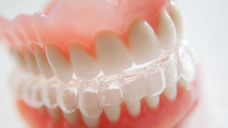 Zahngesundheit ist wichtig: Knirschschiene für den Unterkiefer (Foto: picture-alliance / Reportdienste, picture alliance / dpa Themendienst / Mascha Brichta)