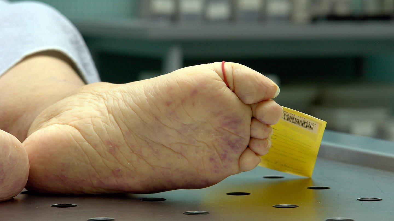 Rechtsmediziner warnen: Tausendfach bleiben in Deutschland Tötungsdelikte unerkannt (Foto: Imago, JOKER/AlexanderxStein)