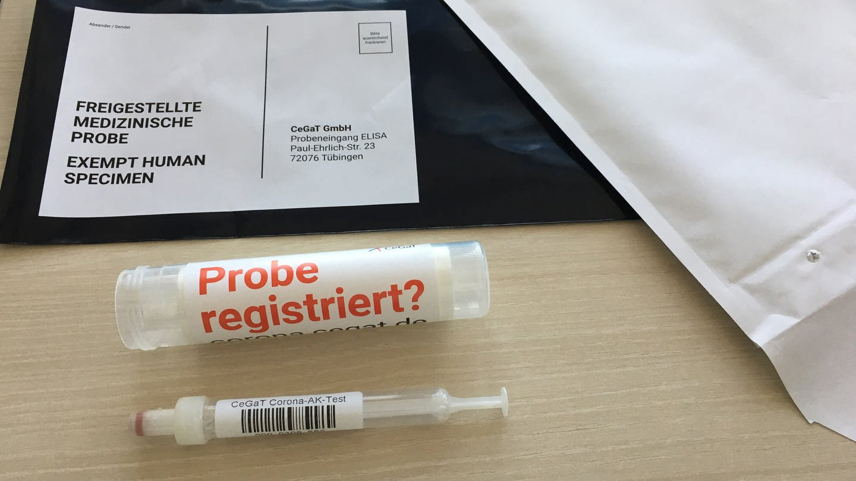 Antikörpertest für Corona Cegat (Foto: SWR, Georg Filser)