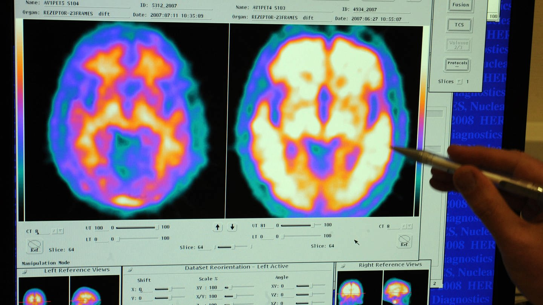 Gehirn von einem gesunden und einem Alzheimer-Patienten (Foto: dpa Bildfunk, Picture Alliance)