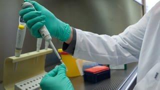 Forscher bereitet PCR-Test vor. (Foto: dpa Bildfunk, picture alliance/dpa | Sebastian Gollnow)