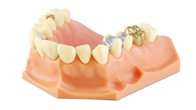 Zahnmodell mit verschiedenen Behandlungen (Foto: Colourbox)