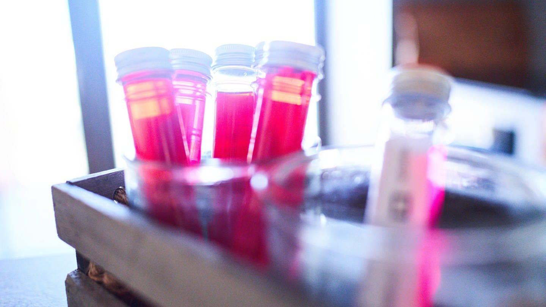 Die Serumtherapie gilt als eine vielversprechende Methode im Kampf gegen das neue Coroanvirus und die Lungenkrankheit Covid-19. (Foto: Imago, imago images/Action Pictures)