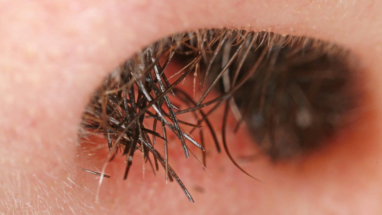 Nasenhaare in Großaufnahme (Foto: Imago, imago/imagebroker)