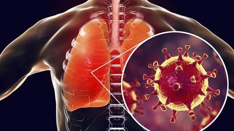 Vom Coronavirus gibt es verschiedene Varianten. Als gefährlich gelten z.B. der SARS- oder wie hier abgebildet der MERS -Erreger. (Foto: imago images, imago  Science Photo Library)