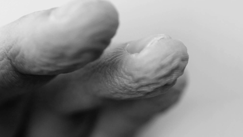 Verschrumpelte Finger in Schwarz-Weiß (Foto: Imago, marshi via www.imago-images.de)
