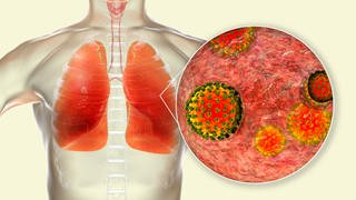 Coronavirus bindet an Lungenzellen (Foto: Imago, imago images/Science Photo Library)