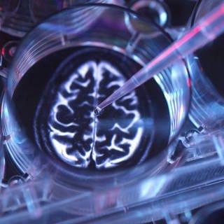 Illustrative Gehirnprobe im Labor (Foto: Imago, imago images/Westend61)