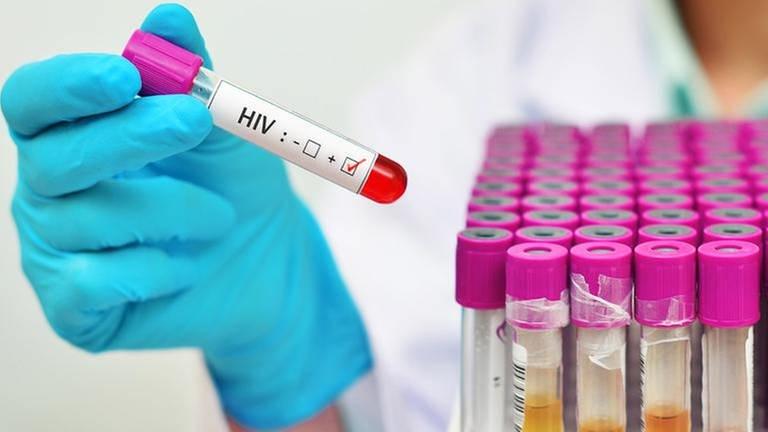 Eine behandschuhte Hand hält ein Reagenzglas mit einer positiven Probe auf HIV und im Hintergrund sind weitere kleine Behältnisse zu sehen
