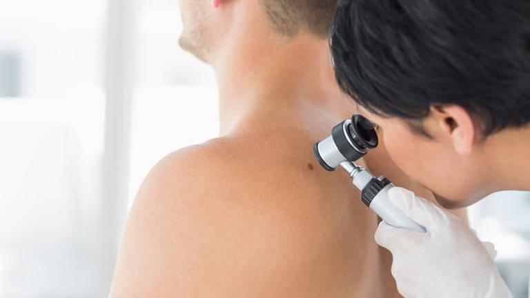 Ein Arzt untersucht die Haut eines Patienten. (Foto: Getty Images, Thinkstock -)