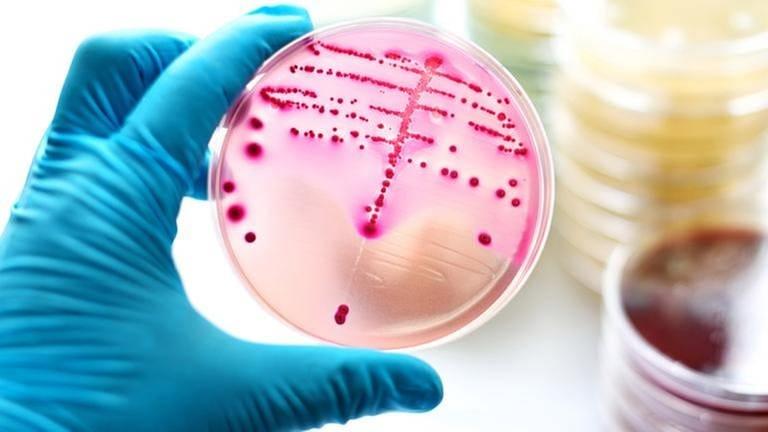Bakterienkolonien in einer Petrischale. (Foto: Getty Images, Thinkstock -)